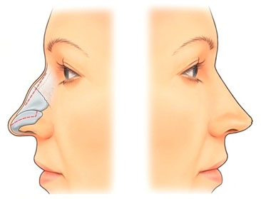 RHINOPLASTY – SURGERY