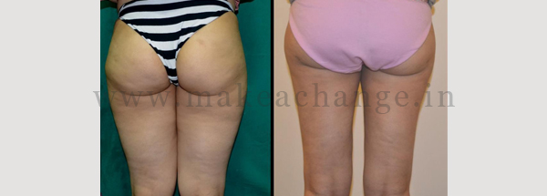 Lipo thighs 3 (2)