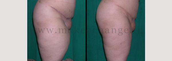 Lipo thighs2