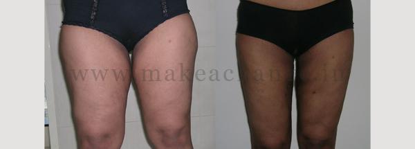 Lipo thighs4 (3)