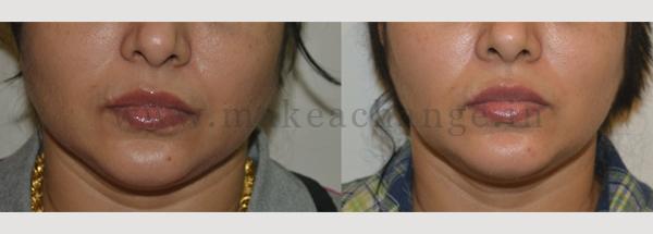 Botox Masseters2-01
