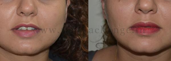 Botox masseters-01