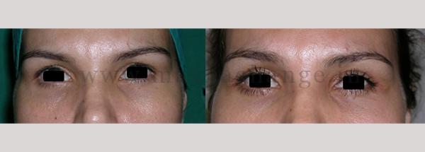 Case 10 – upper bleph (1)-01