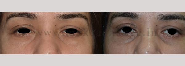 Case 12 lower bleph (1)-01