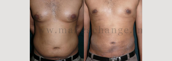 Lipo abdo chest male
