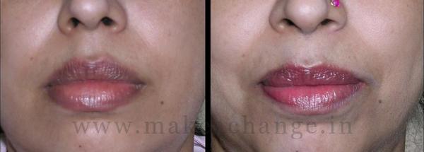 Lower Lip Red